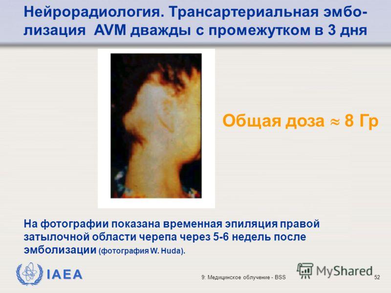 IAEA 9: Медицинское облучение - BSS52 На фотографии показана временная эпиляция правой затылочной области черепа через 5-6 недель после эмболизации (фотография W. Huda). Нейрорадиология. Трансартериальная эмбо- лизация AVM дважды с промежутком в 3 дн