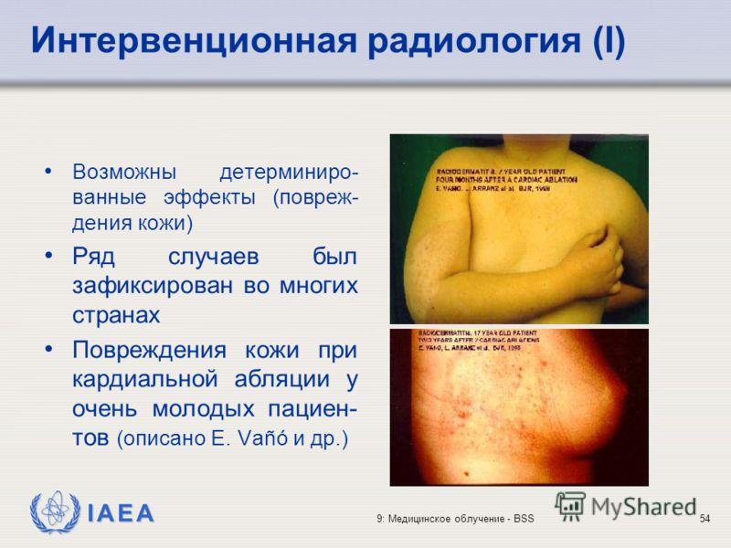 IAEA 9: Медицинское облучение - BSS54 Возможны детерминиро- ванные эффекты (повреж- дения кожи) Ряд случаев был зафиксирован во многих странах Повреждения кожи при кардиальной абляции у очень молодых пациен- тов (описано E. Vañó и др.) Интервенционна