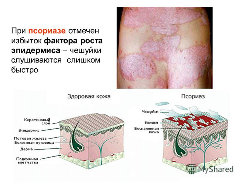При псориазе отмечен избыток фактора роста эпидермиса – чешуйки слущиваются слишком быстро