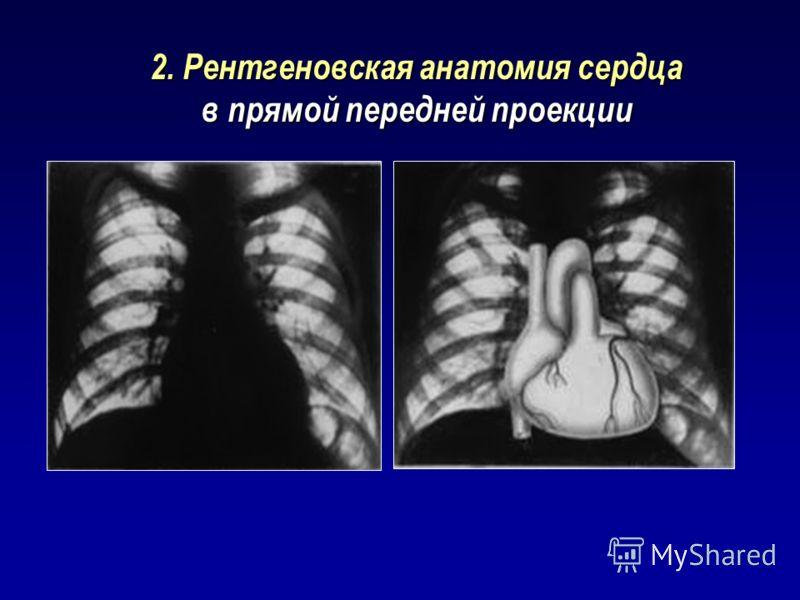 2. Рентгеновская анатомия сердца в прямой передней проекции