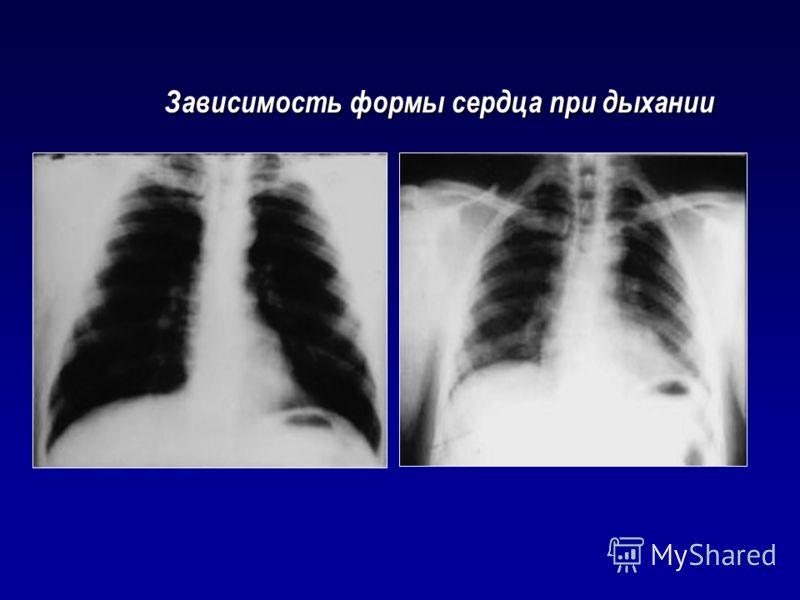 Зависимость формы сердца при дыхании