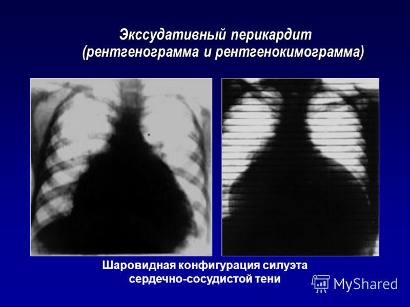 Экссудативный перикардит (рентгенограмма и рентгенокимограмма) Шаровидная конфигурация силуэта сердечно-сосудистой тени
