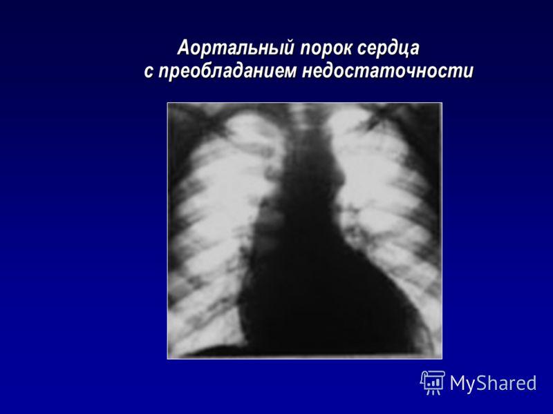 Аортальный порок сердца с преобладанием недостаточности