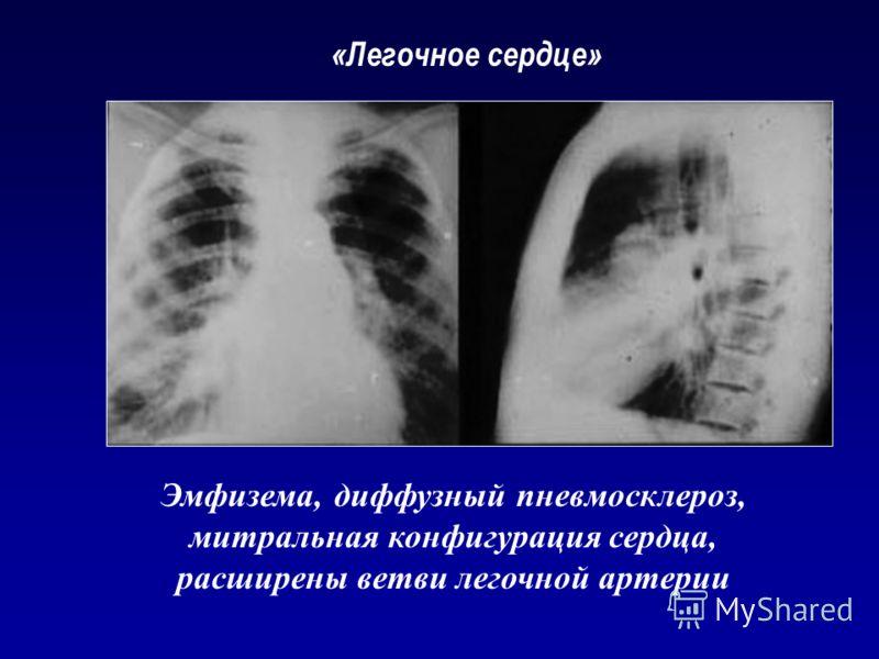 «Легочное сердце» Эмфизема, диффузный пневмосклероз, митральная конфигурация сердца, расширены ветви легочной артерии
