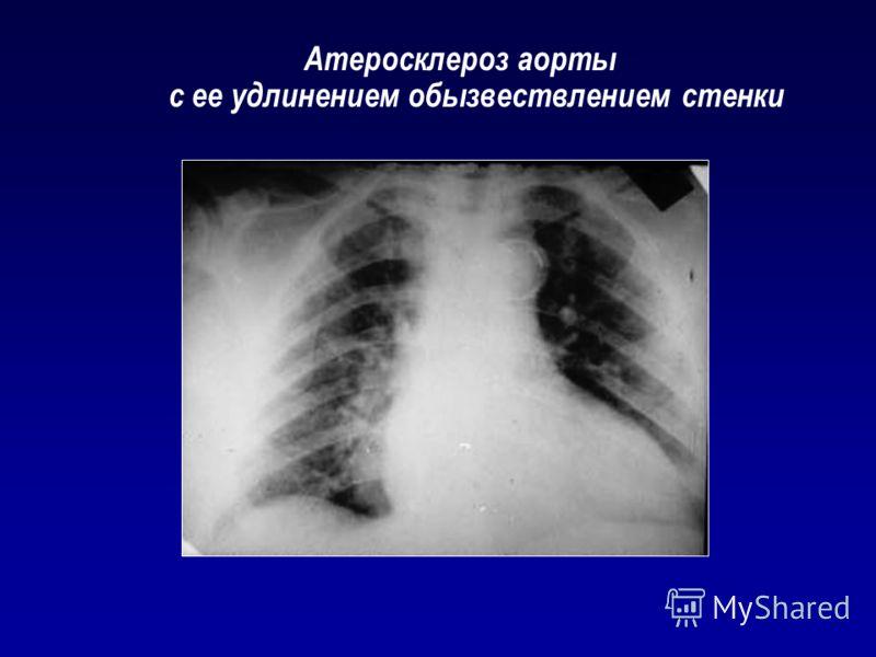 Атеросклероз аорты с ее удлинением обызвествлением стенки