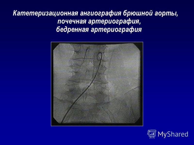 Катетеризационная ангиография брюшной аорты, почечная артериография, бедренная артериография
