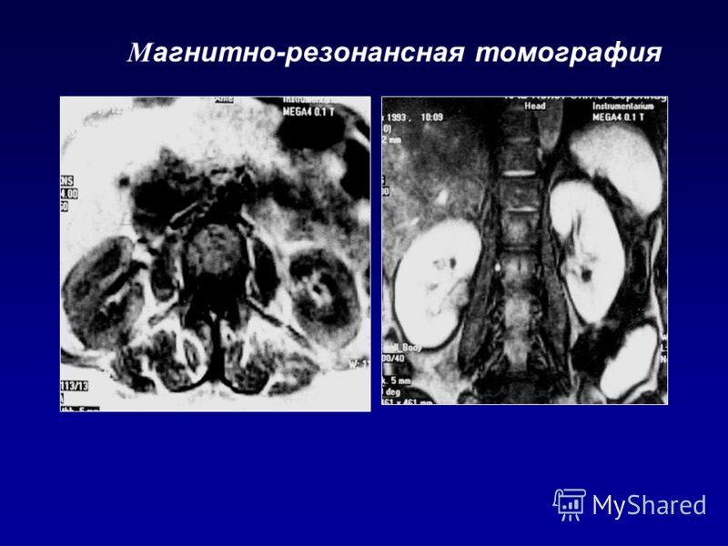М агнитно-резонансная томография