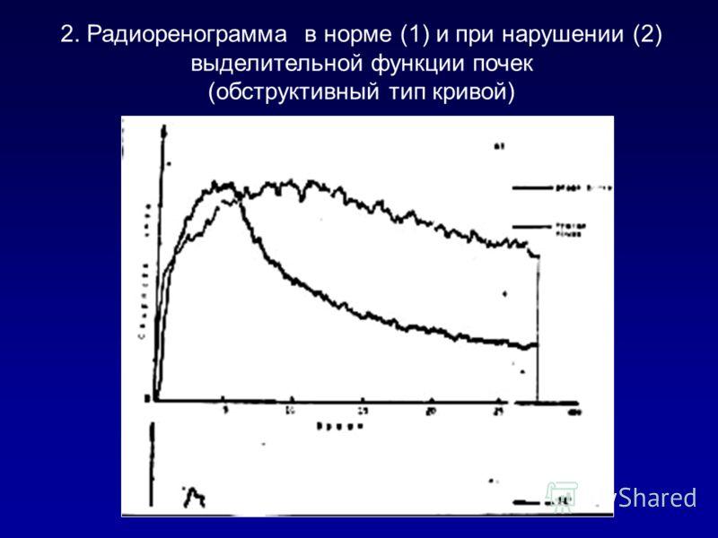2. Радиоренограмма в норме (1) и при нарушении (2) выделительной функции почек (обструктивный тип кривой) 1 2