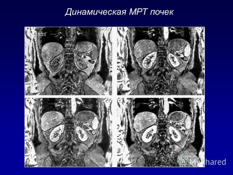 Динамическая МРТ почек