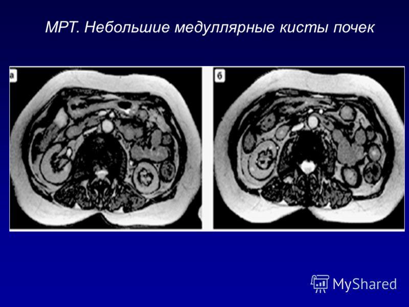 МРТ. Небольшие медуллярные кисты почек