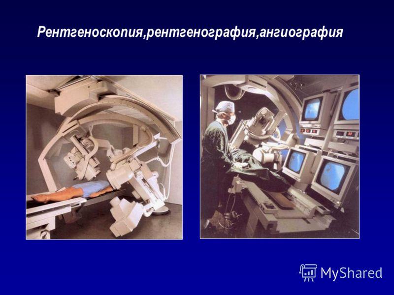 Рентгеноскопия,рентгенография,ангиография