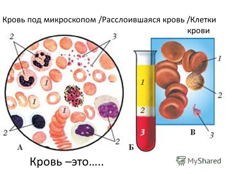 Кровь под микроскопом /Расслоившаяся кровь /Клетки крови Кровь –это…..