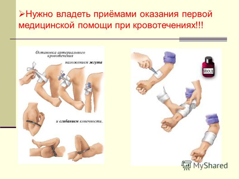 Нужно владеть приёмами оказания первой медицинской помощи при кровотечениях!!!