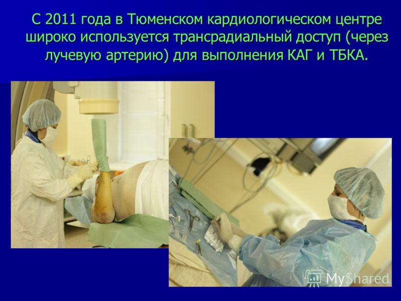 С 2011 года в Тюменском кардиологическом центре широко используется трансрадиальный доступ (через лучевую артерию) для выполнения КАГ и ТБКА.