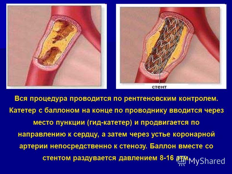 Вся процедура проводится по рентгеновским контролем. Катетер с баллоном на конце по проводнику вводится через место пункции (гид-катетер) и продвигается по направлению к сердцу, а затем через устье коронарной артерии непосредственно к стенозу. Баллон