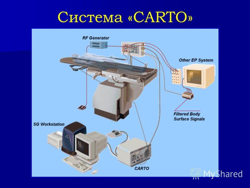 Система «CARTO»
