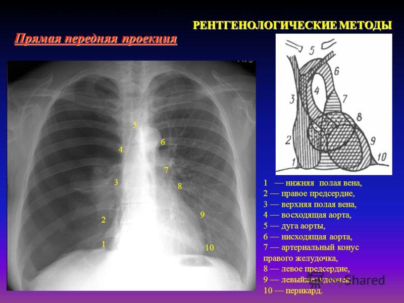 Лучевая диагностика заболеваний сердечно-сосудистой системы РЕНТГЕНОЛОГИЧЕСКИЕ МЕТОДЫ Прямая передняя проекция 1 нижняя полая вена, 2 правое предсердие, 3 верхняя полая вена, 4 восходящая аорта, 5 дуга аорты, 6 нисходящая аорта, 7 артериальный конус