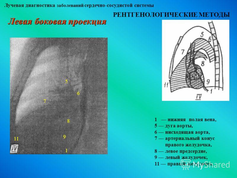 Лучевая диагностика заболеваний сердечно-сосудистой системы РЕНТГЕНОЛОГИЧЕСКИЕ МЕТОДЫ Левая боковая проекция 1 нижняя полая вена, 5 дуга аорты, 6 нисходящая аорта, 7 артериальный конус правого желудочка, 8 левое предсердие, 9 левый желудочек, 11 прав