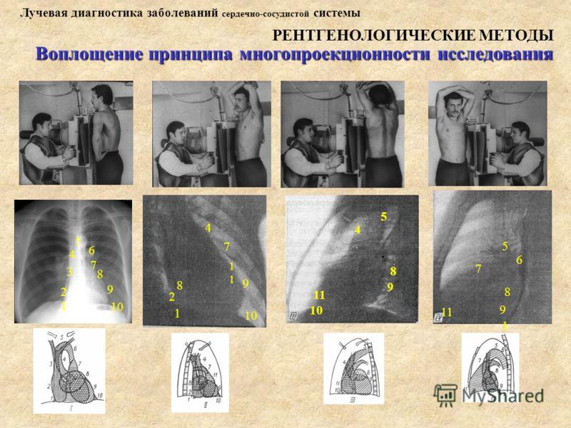 Лучевая диагностика заболеваний сердечно-сосудистой системы РЕНТГЕНОЛОГИЧЕСКИЕ МЕТОДЫ Воплощение принципа многопроекционности исследования 11 9 8 7 6 5 1 10 11 9 8 5 4 1 2 4 7 8 9 10 1 1 2 3 4 5 6 7 8 9