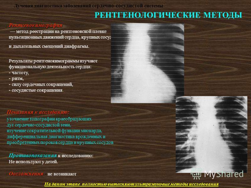 Лучевая диагностика заболеваний сердечно-сосудистой системы РЕНТГЕНОЛОГИЧЕСКИЕ МЕТОДЫ Рентгенокимография метод реестрации на рентгеновской плевке пульсационных движений сердца, крупных сосудов и дыхательных смещений диафрагмы. Результаты рентгенокимо