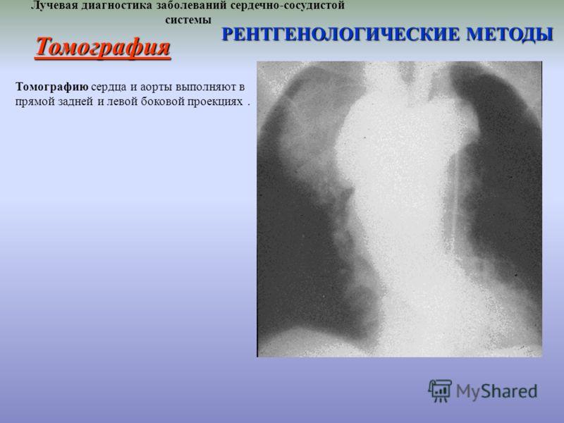 Лучевая диагностика заболеваний сердечно-сосудистой системы РЕНТГЕНОЛОГИЧЕСКИЕ МЕТОДЫ Томографию сердца и аорты выполняют в прямой задней и левой боковой проекциях. Томография