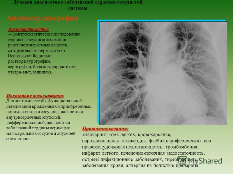 Лучевая диагностика заболеваний сердечно-сосудистой системы Ангиокардиография Ангиокардиография рентгенологическое исследование сердца и сосудов при помощи рентгеноконтрастных веществ, которые вводят через катетер Используют йодистые растворы (урогра
