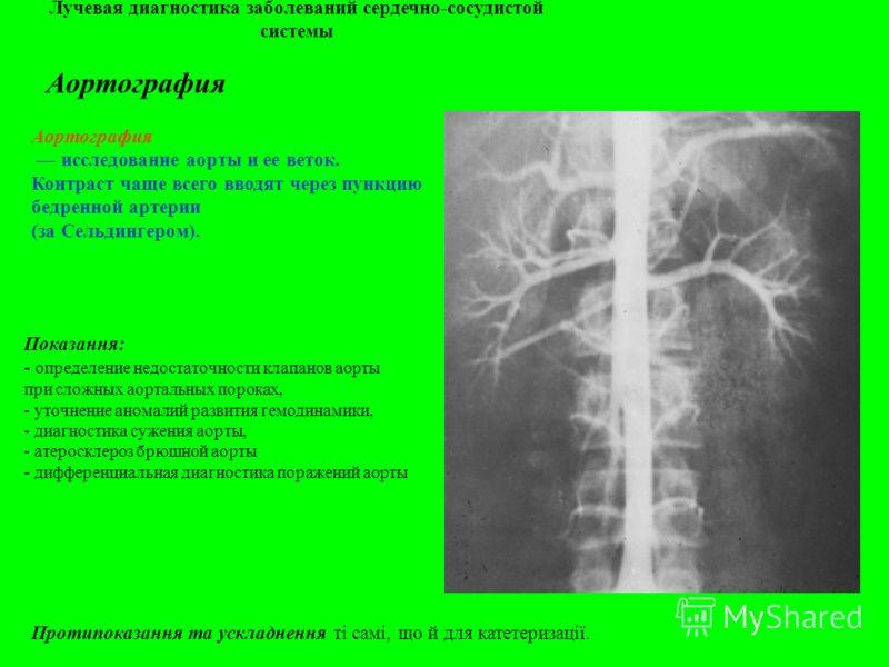 Лучевая диагностика заболеваний сердечно-сосудистой системы Аортография исследование аорты и ее веток. Контраст чаще всего вводят через пункцию бедренной артерии (за Сельдингером). Показання: - определение недостаточности клапанов аорты при сложных а