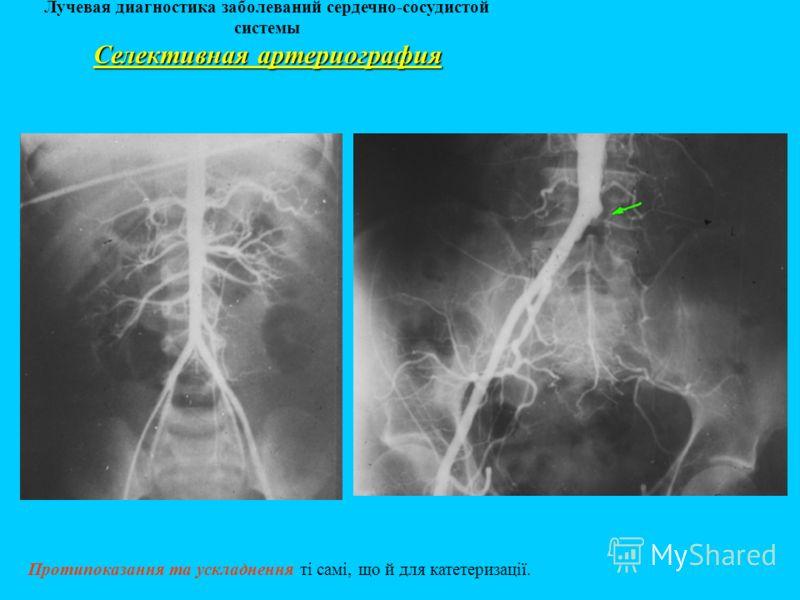 Лучевая диагностика заболеваний сердечно-сосудистой системы Протипоказання та ускладнення ті самі, що й для катетеризації. Селективная артериография