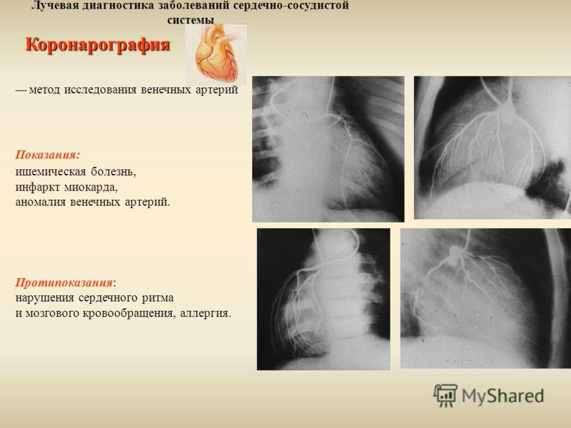 Лучевая диагностика заболеваний сердечно-сосудистой системыКоронарография метод исследования венечных артерий Показания: ишемическая болезнь, инфаркт миокарда, аномалия венечных артерий. Протипоказания: нарушения сердечного ритма и мозгового кровообр