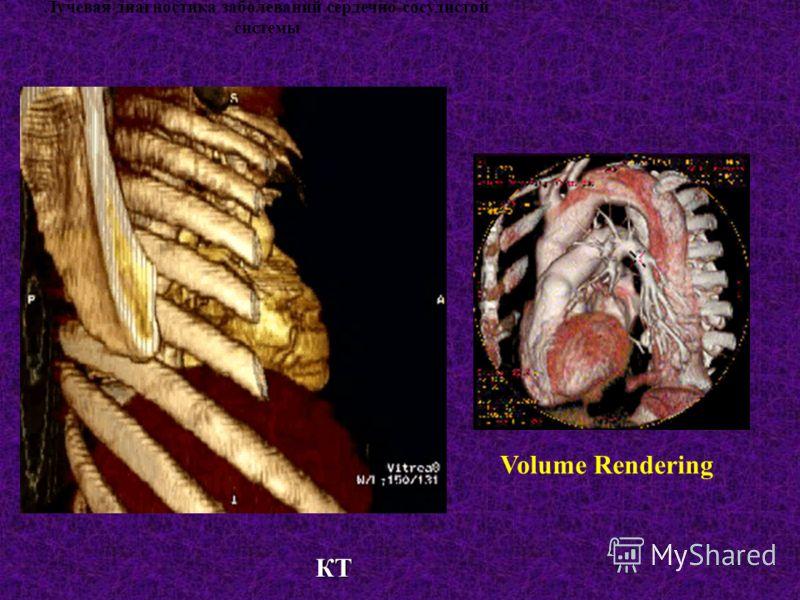 Лучевая диагностика заболеваний сердечно-сосудистой системы Volume Rendering КТ КТ