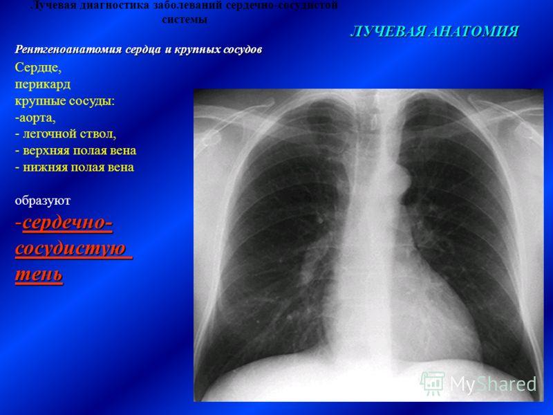 ЛУЧЕВАЯ АНАТОМИЯ Рентгеноанатомия сердца и крупных сосудов Сердце, перикард крупные сосуды: -аорта, - легочной ствол, - верхняя полая вена - нижняя полая вена образуют -сердечно- сосудистуютень