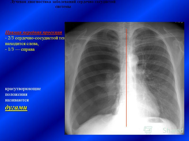 Лучевая диагностика заболеваний сердечно-сосудистой системы краєутворюющие положения називаютсядугами Прямая передняя проекция - 2/3 сердечно-сосудистой тени находится слева, - 1/3 справа