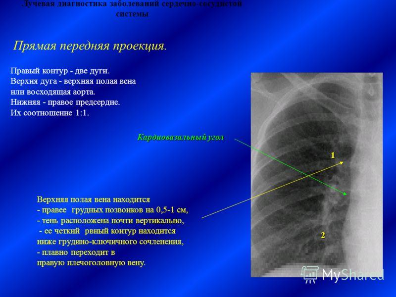 Лучевая диагностика заболеваний сердечно-сосудистой системы Правый контур - две дуги. Верхня дуга - верхняя полая вена или восходящая аорта. Нижняя - правое предсердие. Их соотношение 1:1. Кардиовазальный угол 1 2 Верхняя полая вена находится - праве