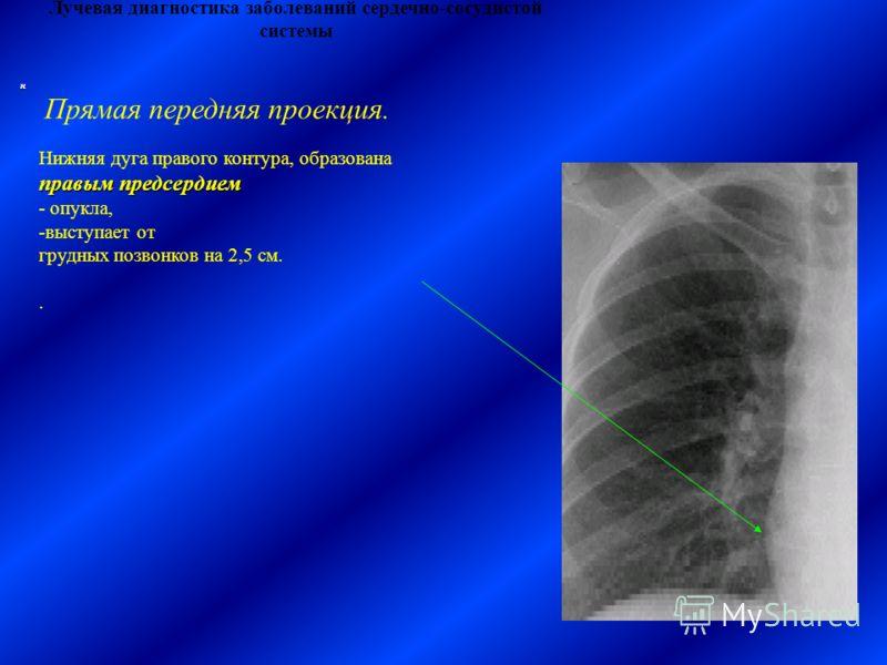 Лучевая диагностика заболеваний сердечно-сосудистой системы Нижняя дуга правого контура, образована правым предсердием - опукла, -выступает от грудных позвонков на 2,5 см.. Прямая передняя проекция. н