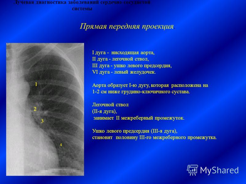 Лучевая диагностика заболеваний сердечно-сосудистой системы І дуга - нисходящая аорта, ІІ дуга - легочной ствол, ІІІ дуга - ушко левого предсердия, VІ дуга - левый желудочек. Аорта образует I-ю дугу, которая расположена на 1-2 см ниже грудино-ключичн
