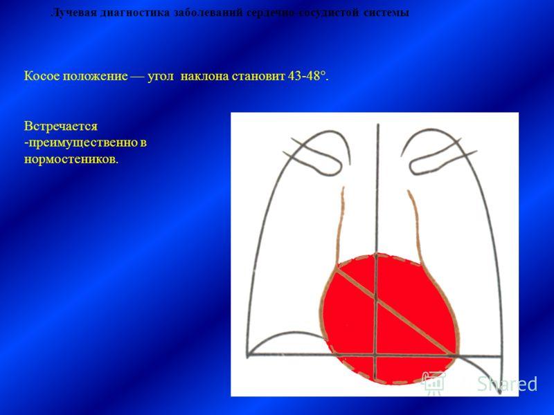 Лучевая диагностика заболеваний сердечно-сосудистой системы Косое положение угол наклона становит 43-48°. Встречается -преимущественно в нормостеников.