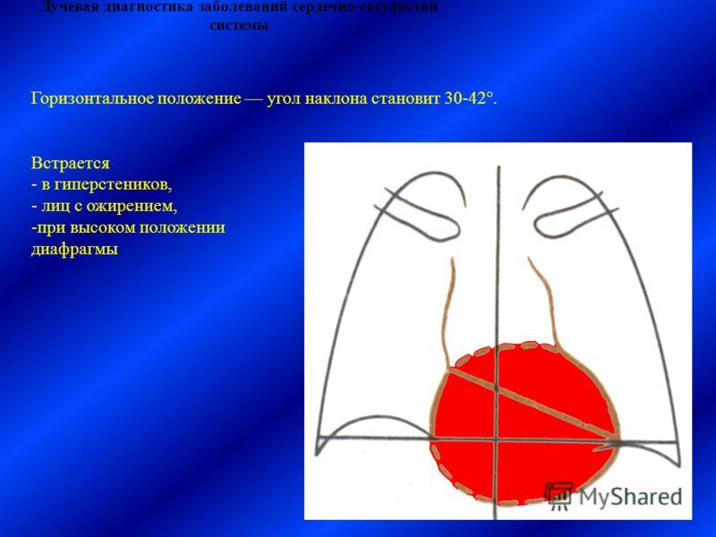 Лучевая диагностика заболеваний сердечно-сосудистой системы Горизонтальное положение угол наклона становит 30-42°. Встрается - в гиперстеников, - лиц с ожирением, -при высоком положении диафрагмы.
