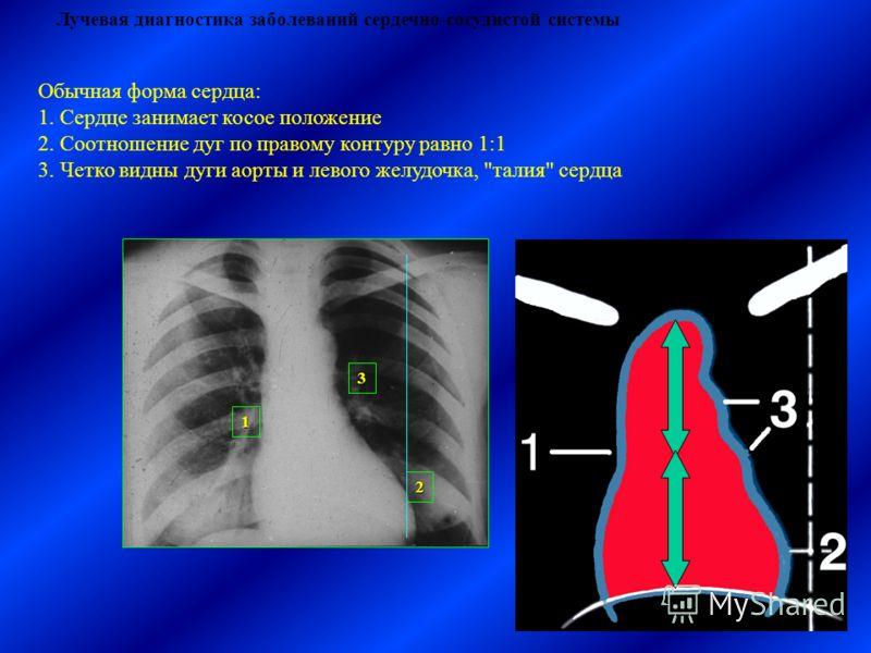 Лучевая диагностика заболеваний сердечно-сосудистой системы Обычная форма сердца: 1. Сердце занимает косое положение 2. Соотношение дуг по правому контуру равно 1:1 3. Четко видны дуги аорты и левого желудочка, талия сердца 1 2 3