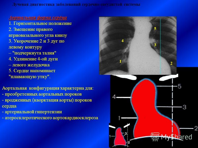 Лучевая диагностика заболеваний сердечно-сосудистой системы Аортальная форма сердца 1. Горизонтальное положение 2. Змещение правого атриовазального угла книзу 3. Укорочение 2 и 3 дуг по левому контуру –