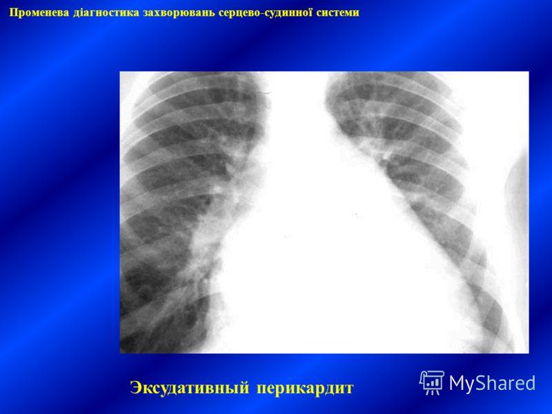 Променева діагностика захворювань серцево-судинної системи Эксудативный перикардит