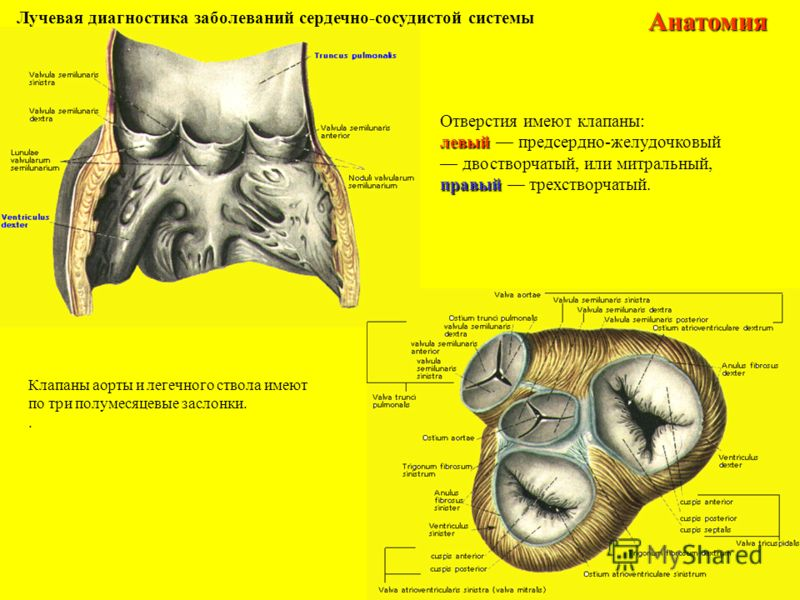 Лучевая диагностика заболеваний сердечно-сосудистой системыАнатомия Клапаны аорты и легечного ствола имеют по три полумесяцевые заслонки.. Отверстия имеют клапаны: левый левый предсердно-желудочковый двостворчатый, или митральный, правый правый трехс