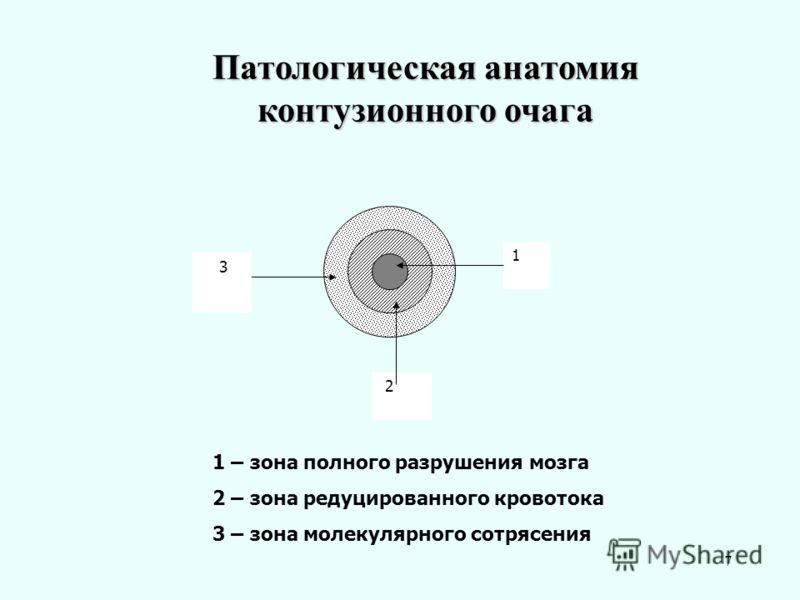 7 Патологическая анатомия контузионного очага 1 2 3 1 – зона полного разрушения мозга 2 – зона редуцированного кровотока 3 – зона молекулярного сотрясения