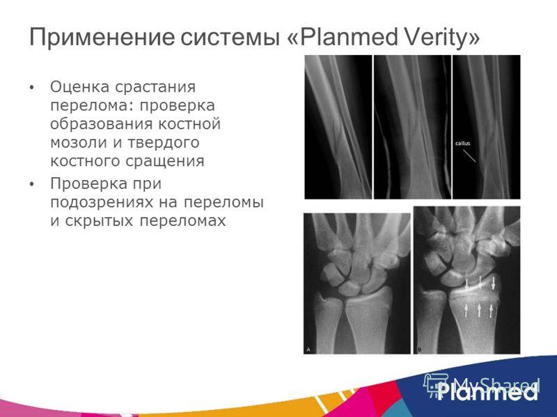 Применение системы «Planmed Verity» Оценка срастания перелома: проверка образования костной мозоли и твердого костного сращения Проверка при подозрениях на переломы и скрытых переломах