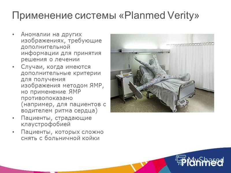 Аномалии на других изображениях, требующие дополнительной информации для принятия решения о лечении Случаи, когда имеются дополнительные критерии для получения изображения методом ЯМР, но применение ЯМР противопоказано (например, для пациентов с води