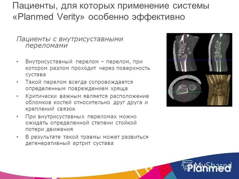 Пациенты, для которых применение системы «Planmed Verity» особенно эффективно Пациенты с внутрисуставными переломами Внутрисуставный перелом – перелом, при котором разлом проходит через поверхность сустава Такой перелом всегда сопровождается определе