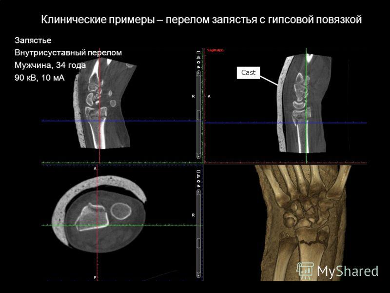 Cast Клинические примеры – перелом запястья с гипсовой повязкой Запястье Внутрисуставный перелом Мужчина, 34 года 90 кВ, 10 мА