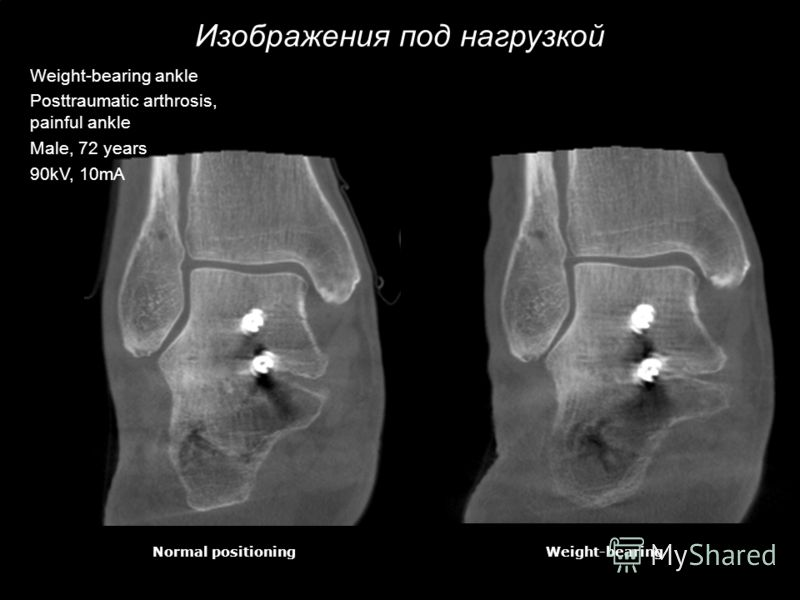 Изображения под нагрузкой Normal positioningWeight-bearing Weight-bearing ankle Posttraumatic arthrosis, painful ankle Male, 72 years 90kV, 10mA
