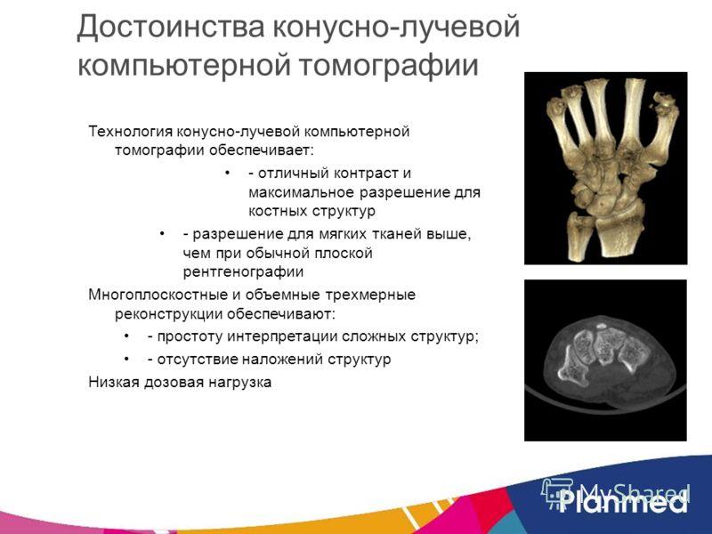 Достоинства конусно-лучевой компьютерной томографии Технология конусно-лучевой компьютерной томографии обеспечивает: - отличный контраст и максимальное разрешение для костных структур - разрешение для мягких тканей выше, чем при обычной плоской рентг