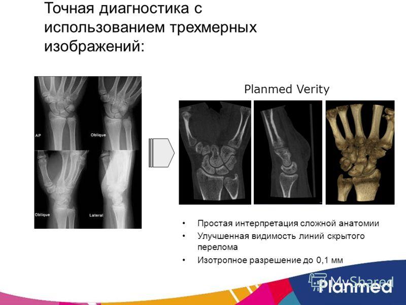 Точная диагностика с использованием трехмерных изображений: Простая интерпретация сложной анатомии Улучшенная видимость линий скрытого перелома Изотропное разрешение до 0,1 мм Planmed Verity