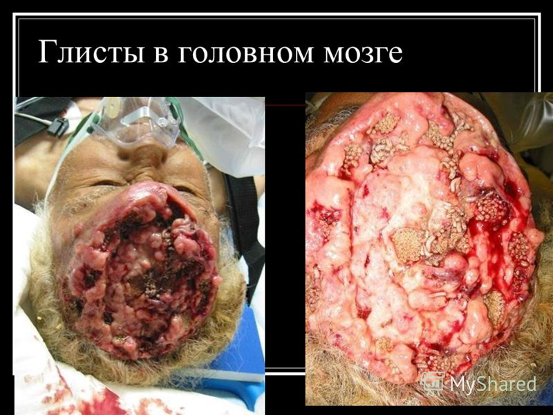 паразиты живущие в мозге человека